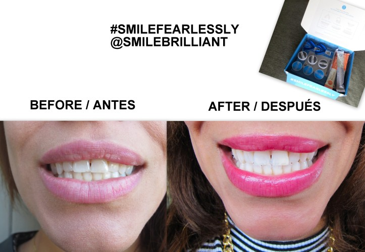 PROMOTIONS SMILE BRILLIANT-TEETH WHITENING-BLANQUEAMIENTO DENTAL