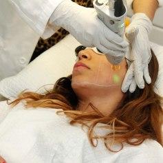 laser-skin-rejuvenation-laser-skin-surfacing-angie-angie-reyn-angienewlook-beauty